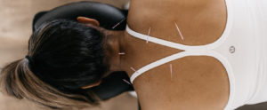 Acupuncture South Tampa Driven Sponaugle Wellness