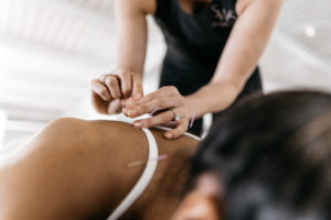 Acupuncture Tampa FAQs DrivenFit SWS