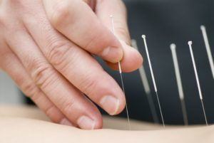 Acupuncture Allergy Relief Driven SWS Tampa FL