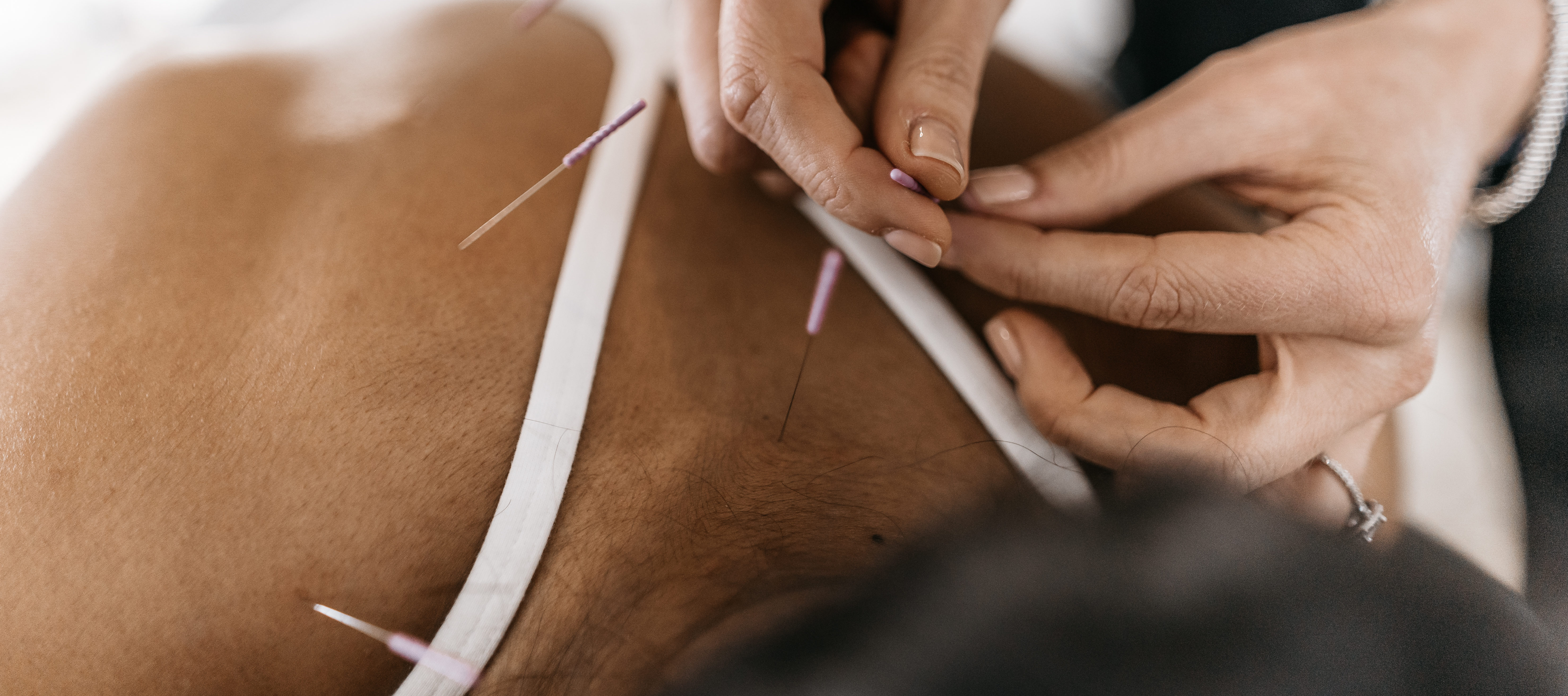 Tampa acupuncturist science behind acupuncture