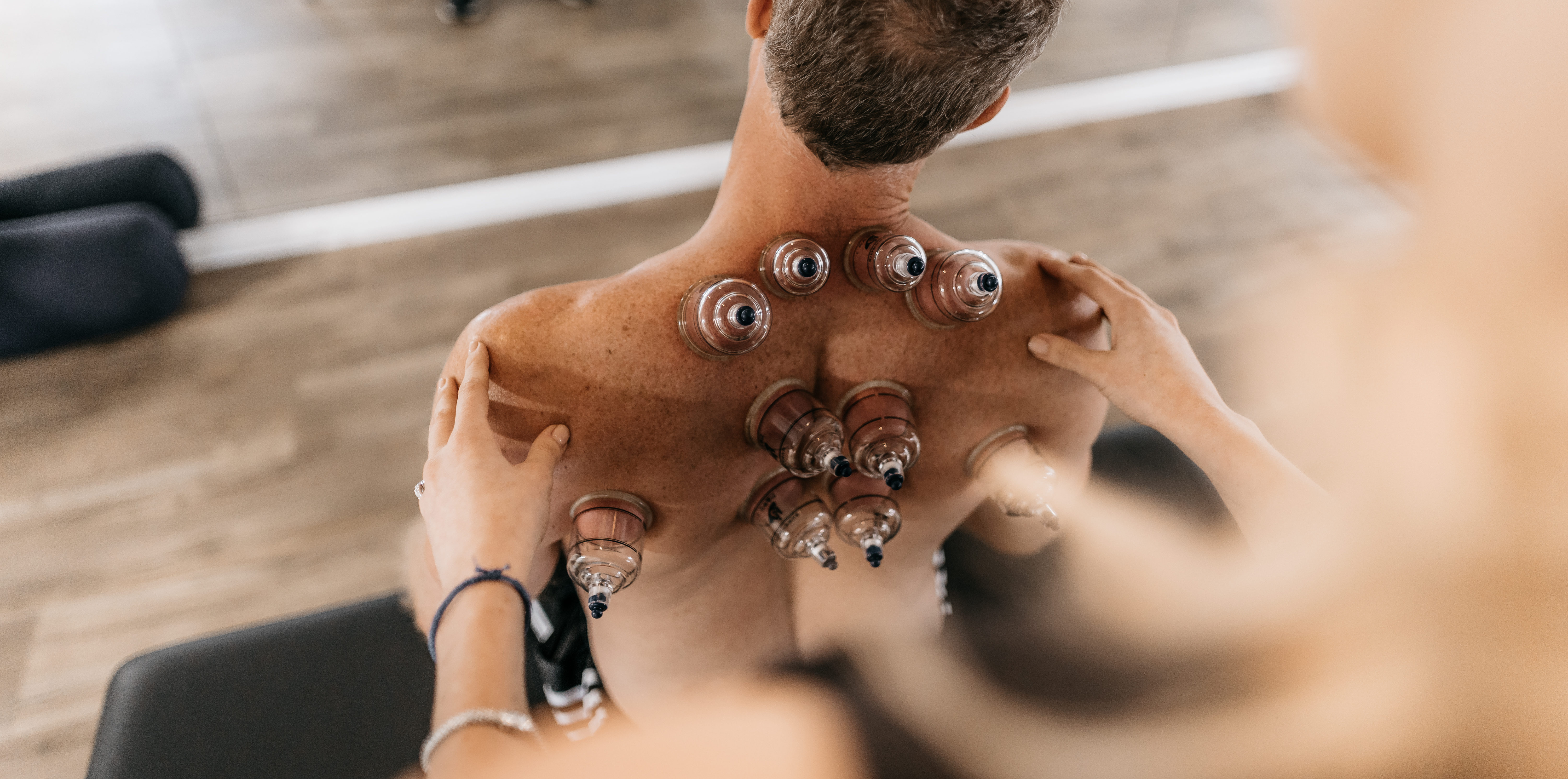 Cupping Therapy in Tampa FL Driven SWS